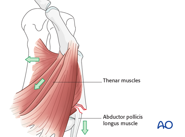 The pull of the thenar muscles results in palmar flexion of the distal fragment.