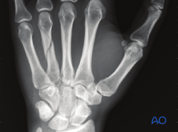 Undisplaced or minimally displaced fractures of the metacarpal shaft can be treated nonoperatively. Most of these fractures ...