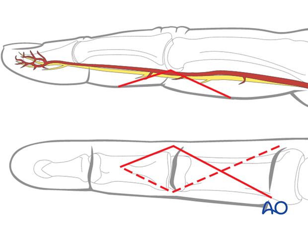 The apex of the angle should be at the end of the intermediate flexor crease, level with the PIP joint.