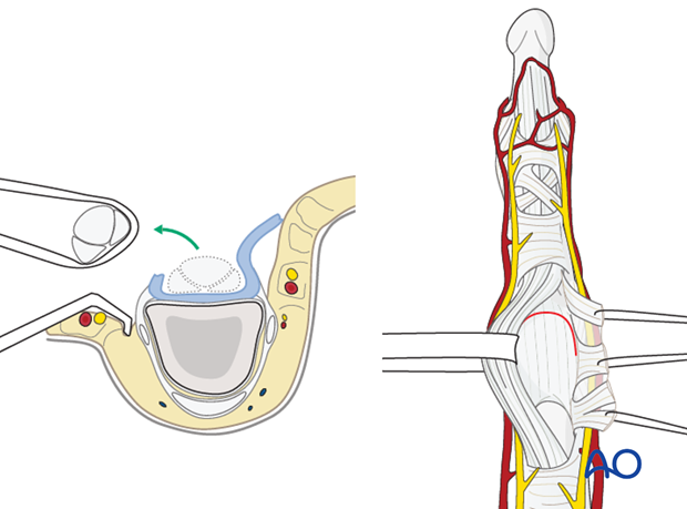 Retract the flexor tendons, using a latex loop (such as a Penrose drain).