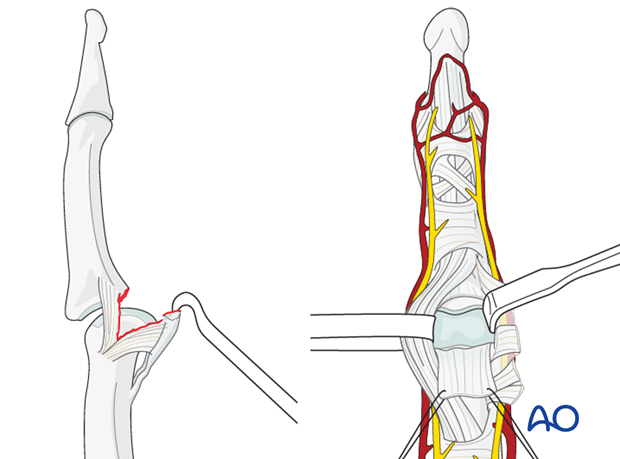 Extension of the PIP joint now exposes the distal edge of the volar plate, which often bears a fracture fragment ...