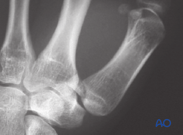 The metacarpal as a whole is also displaced proximally by the abductor pollicis longus muscle. The treatment goals are to ...
