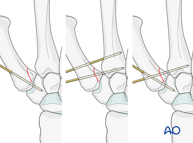Closed reduction and internal fixation comprise the treatment of choice for most of Bennett's fractures.