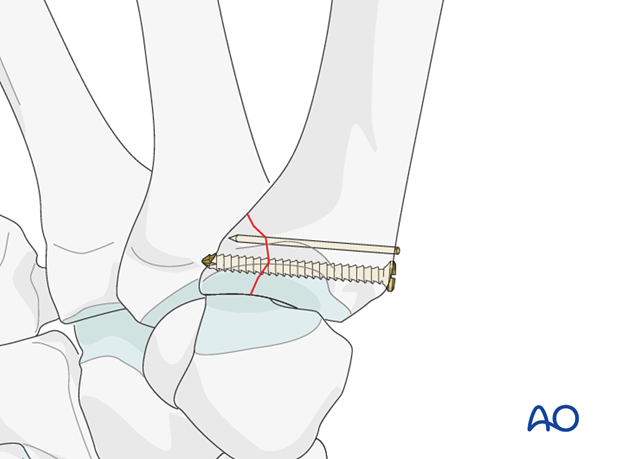 Depending on the size of the palmar marginal fragment, two treatment options are available.