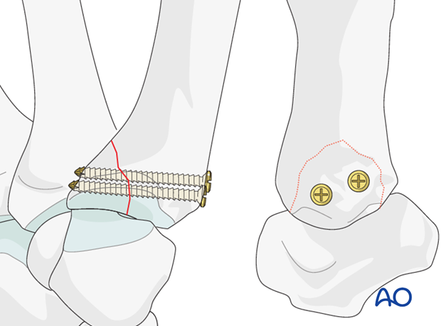 If the fragment comprises more than one third of the articular surface, two screws are used.