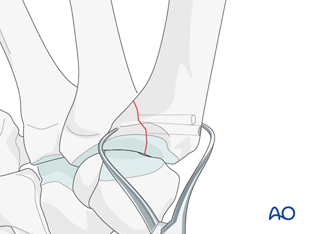 After drilling the glide holes, reduce the fracture by pronation of the metacarpal, and secure with pointed reduction forceps.