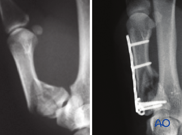 Metaphyseal and articular comminution are often more marked than apparent on the x-rays. The full extent of the comminution ...