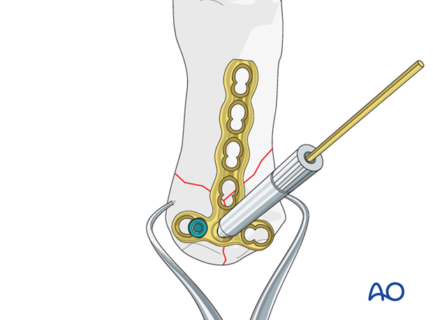 Insert a first locking head screw into the metacarpal base. Remove the K-wire and drill guide.