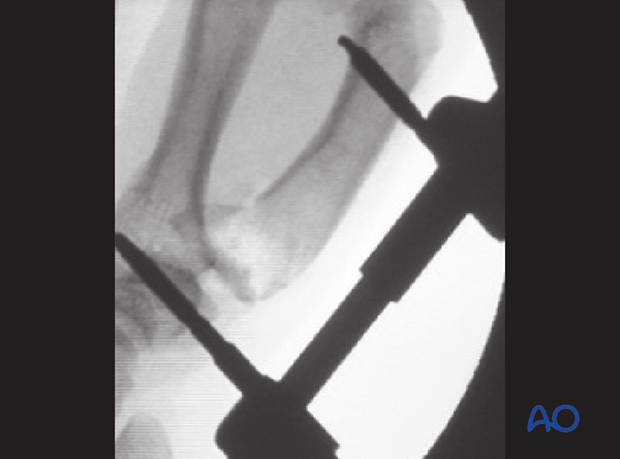 Check the position of the articular surface and the diaphysis using image intensification.