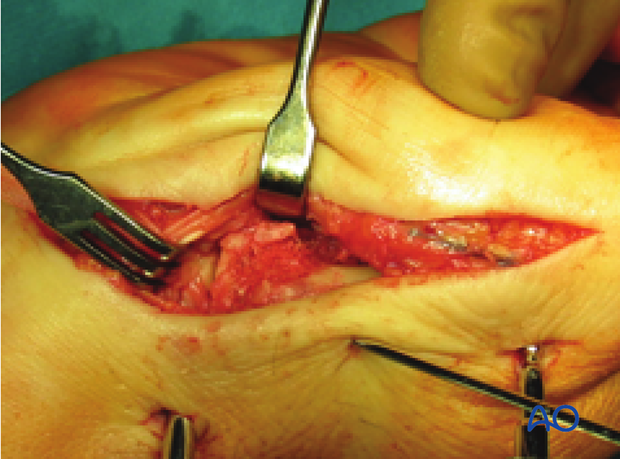 Insert bone graft to fill any subchondral metaphyseal defect.