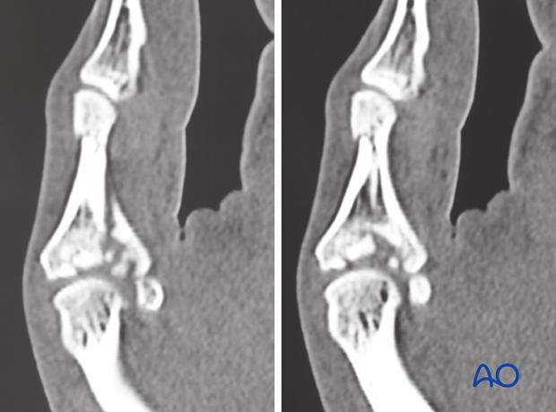 It is difficult to assess the extent of articular comminution from plain radiographs. A CT scan is advisable.