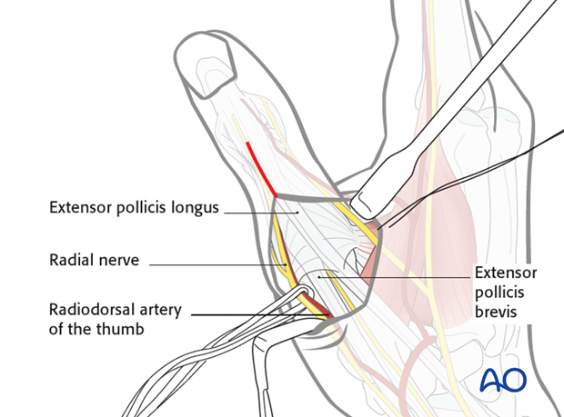 Be careful not to detach the insertion of the extensor pollicis brevis (EPB) into one of the basal fragments.