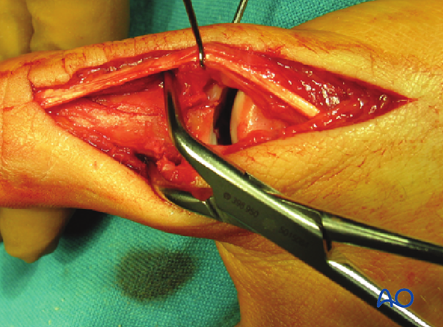 Use a pointed reduction forceps to reduce and hold the diaphyseal fragments.