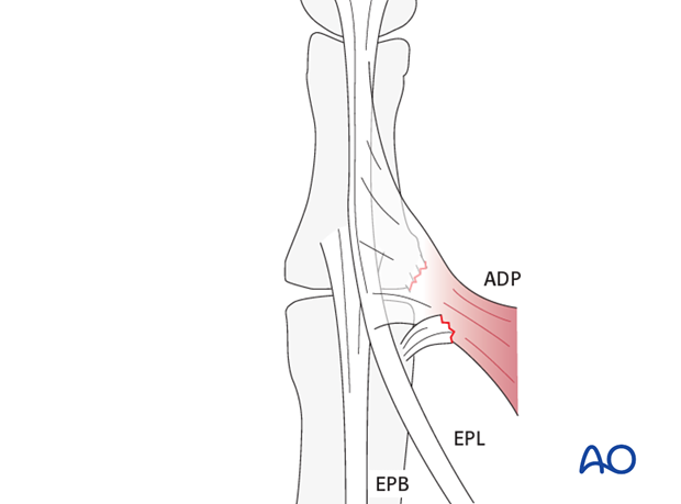 Ulnar collateral ligament injuries are also named skier's, or gamekeeper's, thumb. If undiagnosed it leads to chronic ...