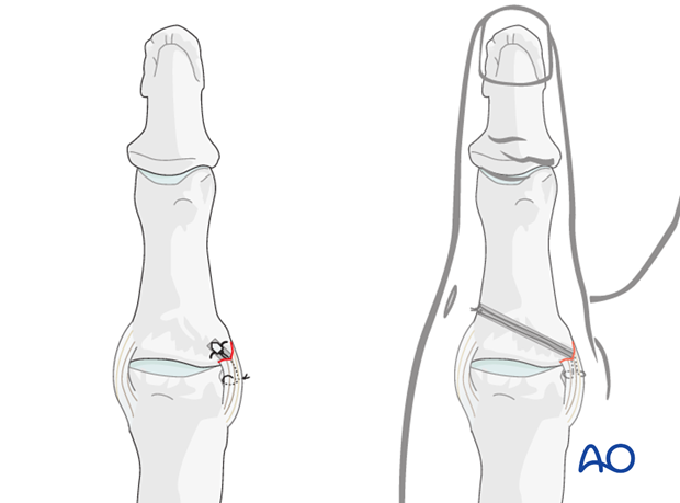 Two alternative techniques are available for collateral ligament reattachment: suture anchors, or tunneling.