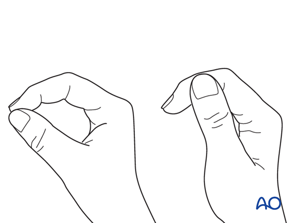 Correct rotation of the thumb can be difficult to judge. Make sure that the tip of the thumb correctly reaches the tip of ...