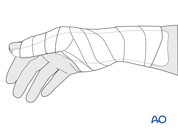 In noncompliant patients, a more restrictive well-padded thumb spica cast may be a wiser choice.