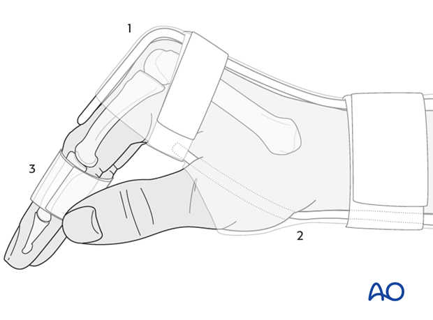 This technique allows immediate mobilization of the interphalangeal joints of all fingers.