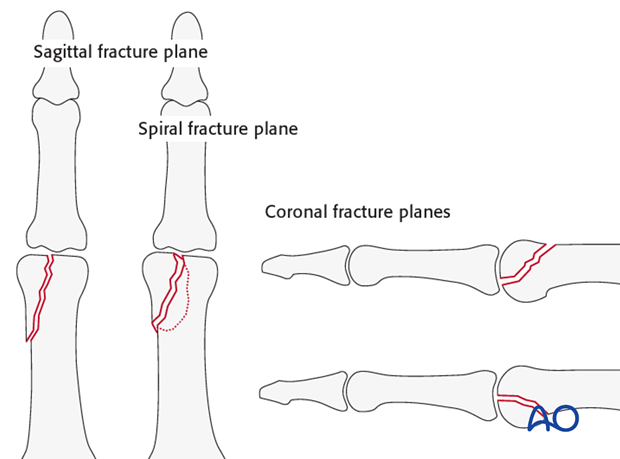 Intraarticular fractures in the interphalangeal joints may lie in the sagittal plane or the coronal plane.