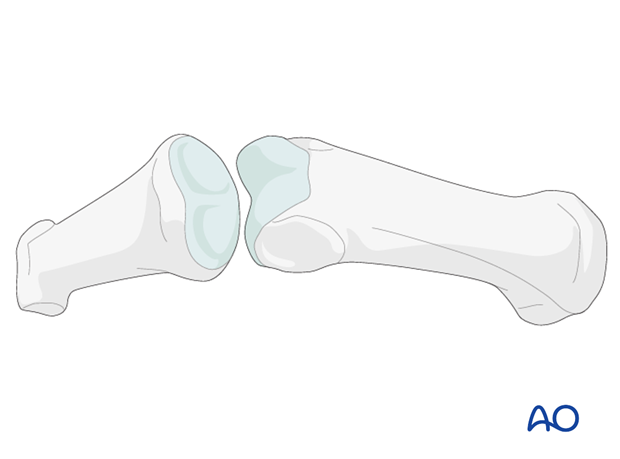 The heads of the proximal and middle phalanges each have two articular condyles that resemble a grooved trochlea, and ...