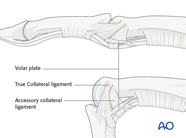 The primary structures stabilizing the interphalangeal joints and preventing displacement in the coronal plane ...