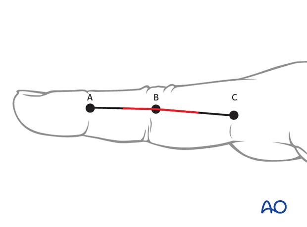 Make a skin incision from the middle point between A and B to the middle point between B and C.