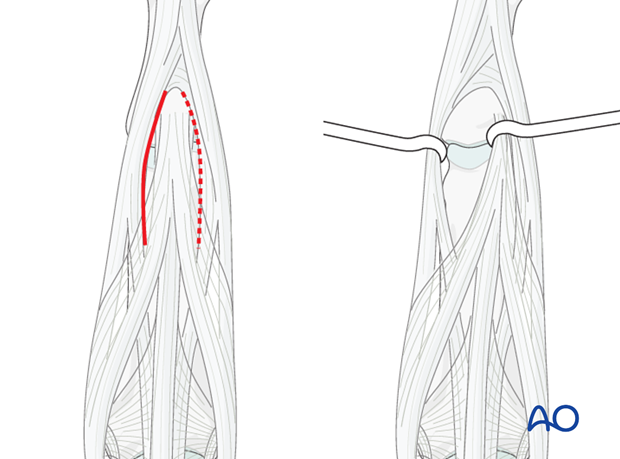 Make an incision in the tendon, between the central slip and the lateral band.