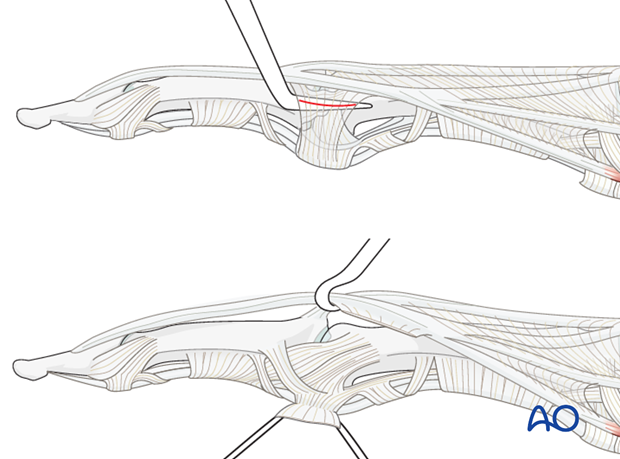 Incise gently lateral to the lateral band. Divide the TRL, using a dental pick inserted between it and the collateral ...
