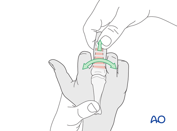Proximal phalanx – nonoperative procedure