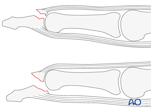 The dorsal approach to the distal interphalangeal (DIP) joint is indicated for extensor tendon avulsion fractures of the ...