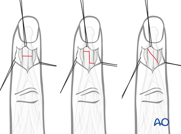 Divide the terminal extensor tendon with either a transverse tenotomy, a step cut, or a long oblique cut. The step cut and ...