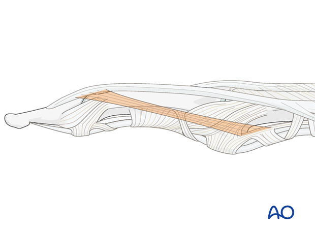 The retinacular ligament of Landsmeer passes obliquely from the palmar aspect at the attachment of the A3 pulley to ...