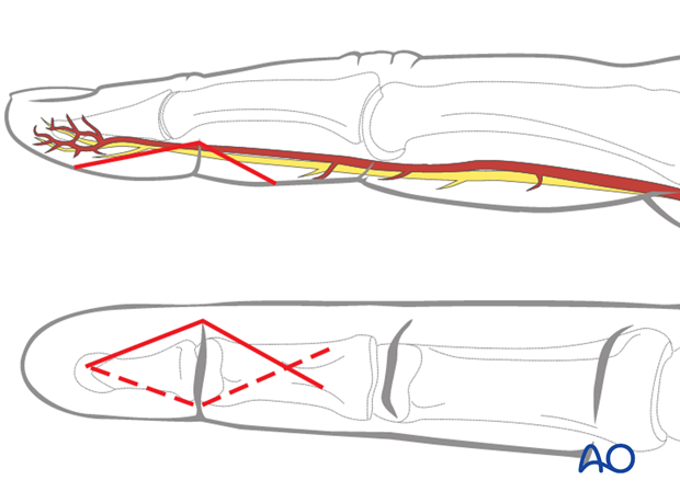 Make a carefully planned palmar angled skin incision (Bruner zigzag), using the flexor skin crease as a guide, as illustrated.