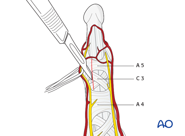 Do not cut the A4 pulley, as it is essential for active finger flexion.