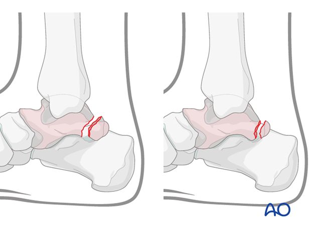 Fractures of the posterior process of the talus