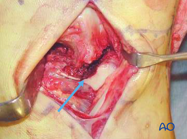 anterolateral approach to the talus