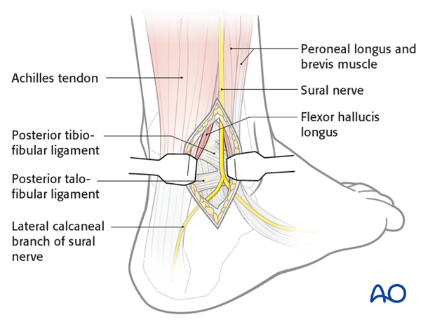 posterolateral approach to the hindfoot
