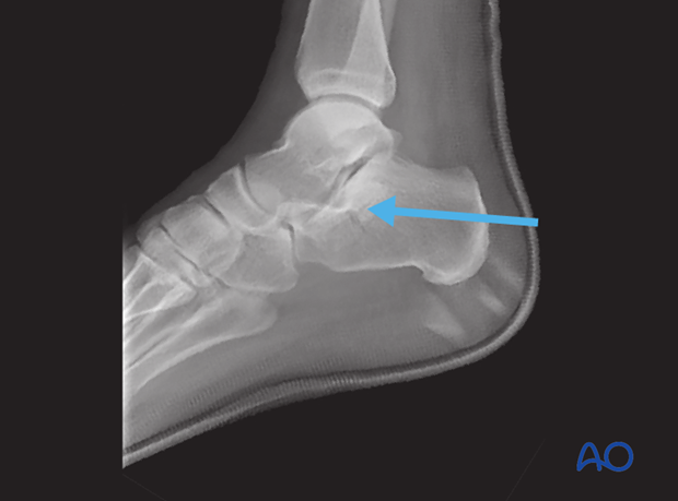 medial approach to the calcaneus