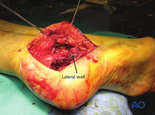 Standard extended lateral approach