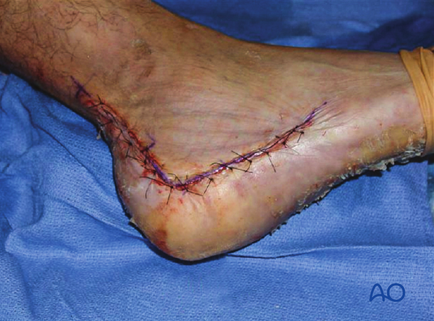 extended lateral approach to the calcaneus