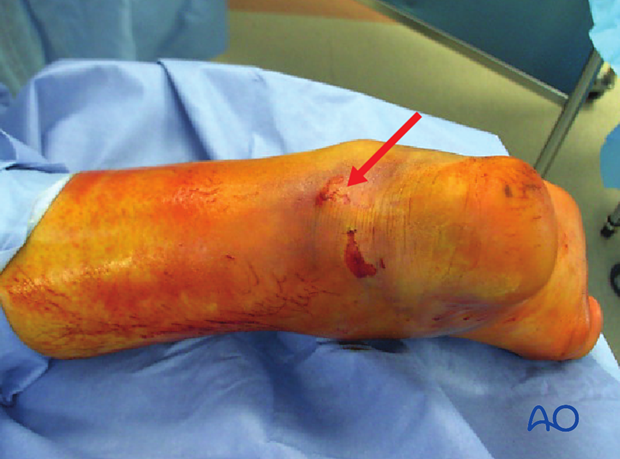 Arrow points to compromised posterior skin