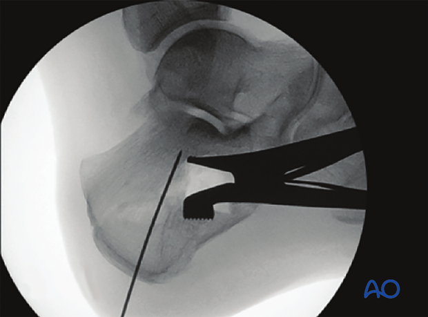 mio k wire and screw fixation joint depression type