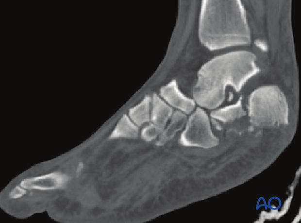 combined hindfoot injuries