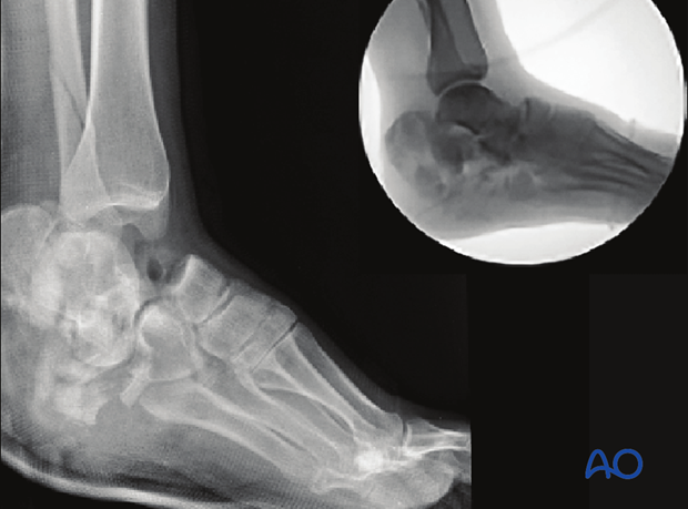 Severe open hindfoot injury