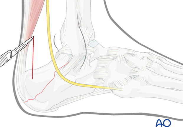 mio posterior approach to the calcaneus