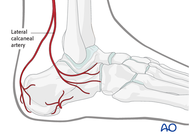 sinus tarsi approach to the calcaneus