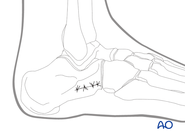 mio lateral approach to the calcaneus