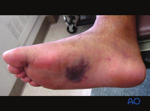 There is midfoot swelling, usually dorsal.
