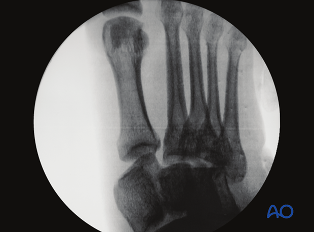 Metatarsal fractures / intertarsal injuries