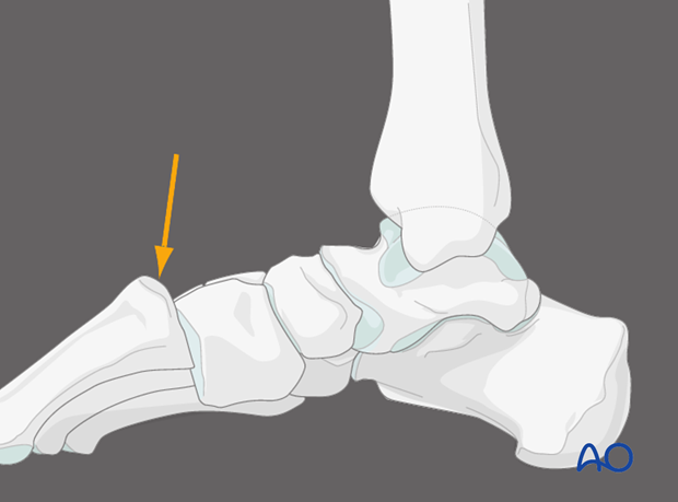 X-rays – lateral view